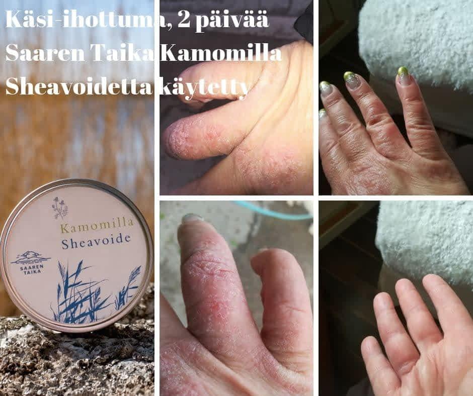 Käsi-ihottuma, 2 päivää Saaren Taika Kamomilla Sheavoidetta käytetty